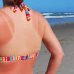Sun Damage Treatments Teaneck, NJ