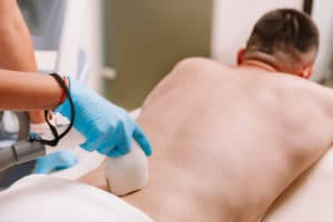 man getting laser hair removal on his lower bac